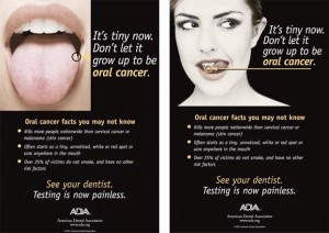 ADA See Your Dentist - Oral Cancer Testing is Now Painless