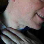 Lump in neck 150x150 Oral Cancer