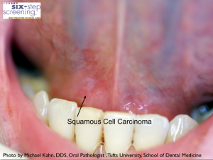 SCC Early1 300x225 Is It Oral Cancer?