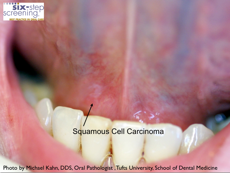Is It Oral Cancer? | Six-Step ScreeningEarly Oral Cancer On Tongue Pictures