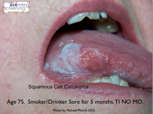 SCC TINOMO 300x224 Is It Oral Cancer?