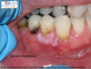 SevereDysplasia21 300x226 Is It Oral Cancer?