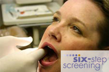 six step screening 2 Oral Cancer