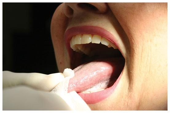 Tongue 'n Gauze