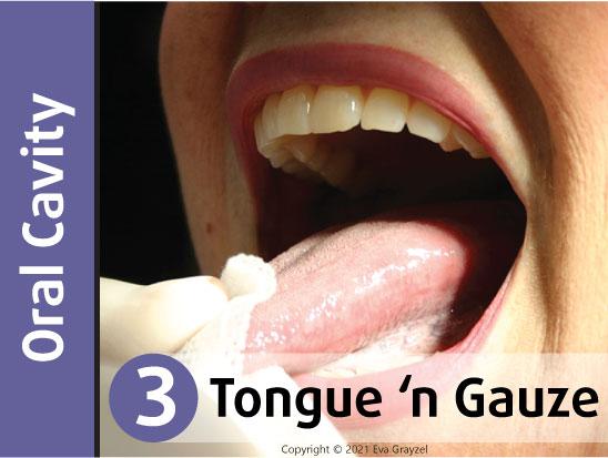 Six-Step Oral Cancer Screening - Step 1: Neck Slide