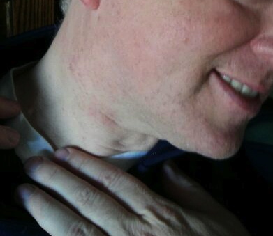 Husband of RDH who was hoarse suddenly presented with a lump in neck. DX: Stage III Squamous Cell Carcinoma